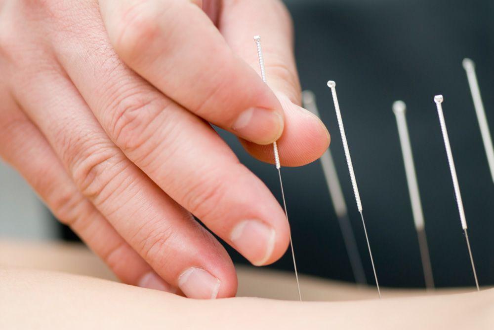 acupuncture treatment gold coast